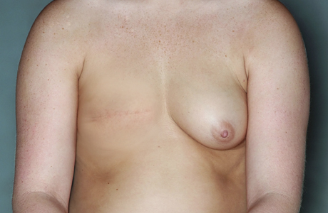 Mastectomy of right breast